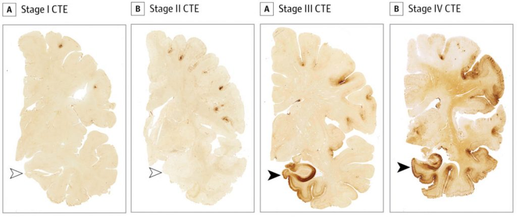 Top researcher says brain injury in sports 'the civil ...